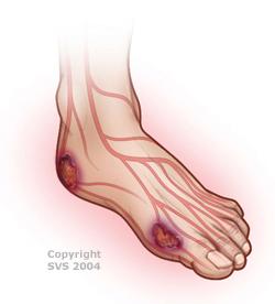 how to avoid vascular disease