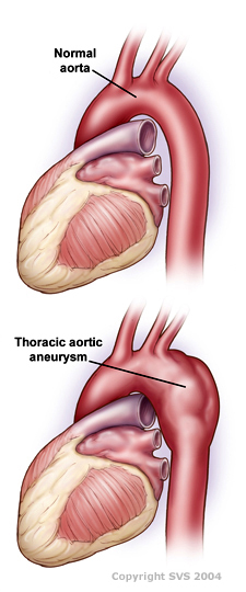Vascular Institute Of Michigan Thoracic Aneurysm